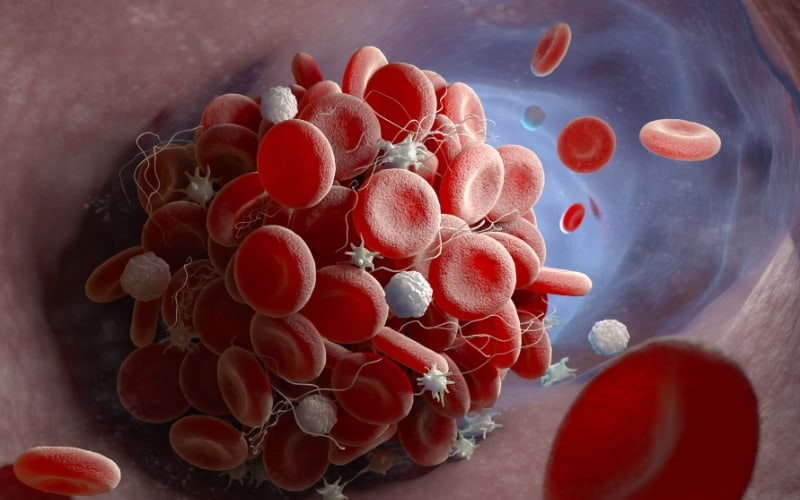 Blockage in Artery leading to Peripheral Arterial Disease